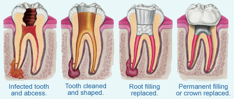 Unfinished root canal treatments linked with pneumonia